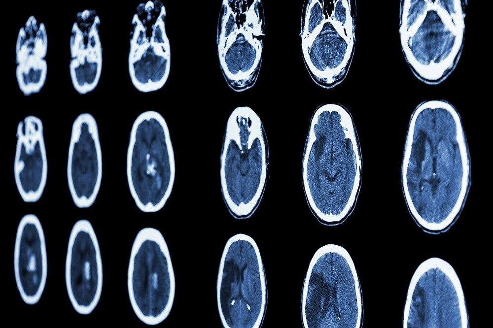 Studies have pointed to a reprogramming of the normal transcriptional response to stroke that induces a neuroprotective response.