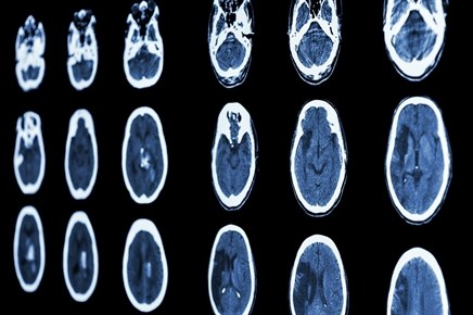 Reducing Neurologic Damage After Stroke With Ischemic Preconditioning