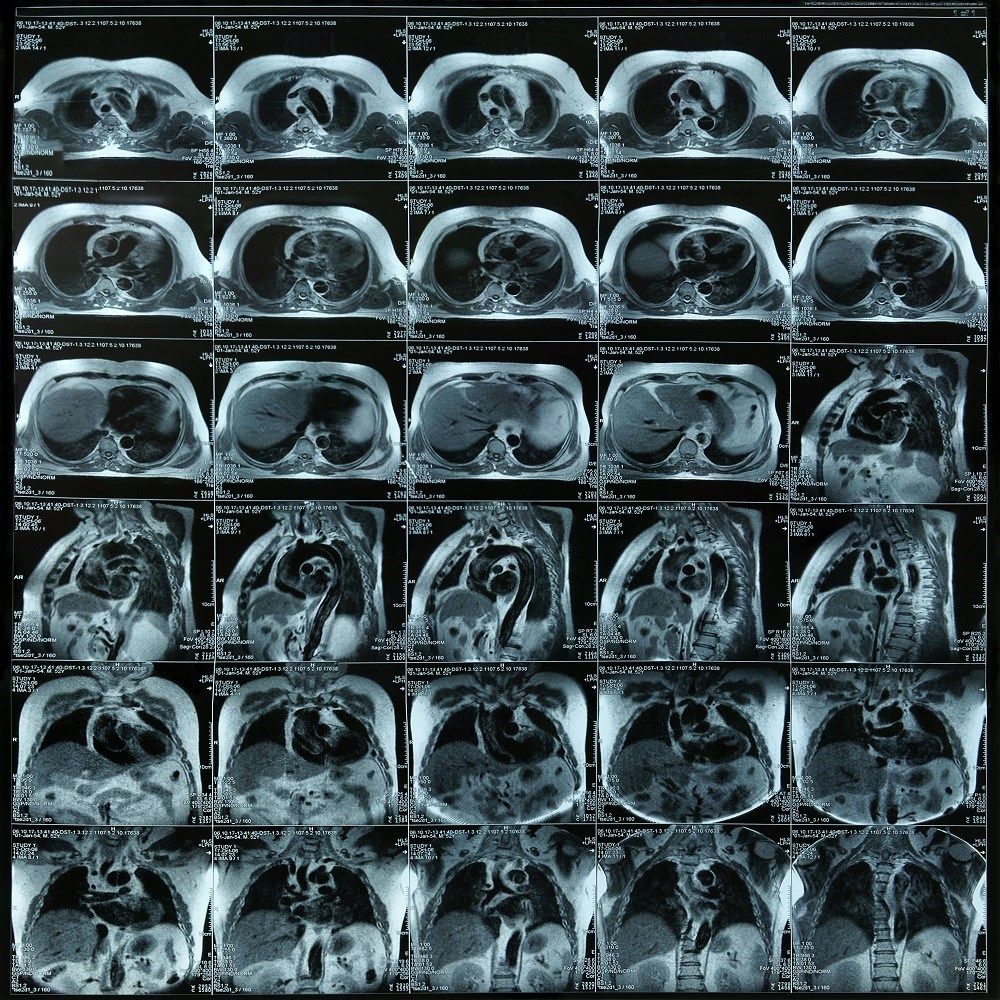 Acute Myocarditis Prognosis Linked to Late Gadolinium Enhancement in Cardiac MRI