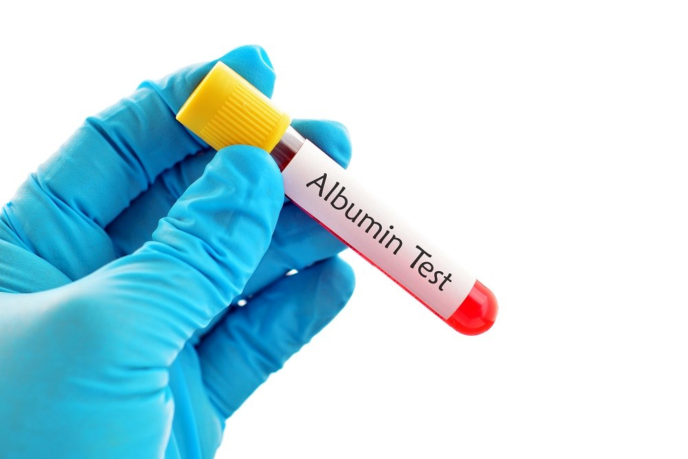 Higher mortality was seen in participants with low serum albumin and a high STS.