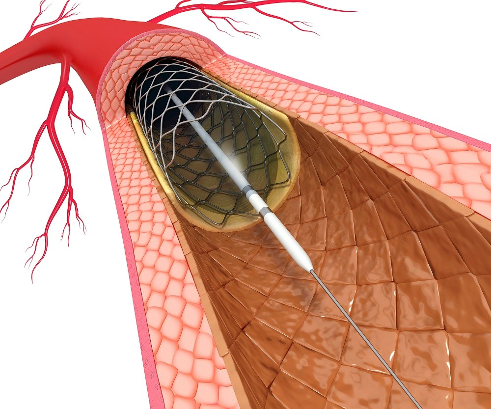 Thrombosis Odds Up With Bioresorbable Vascular Scaffolds