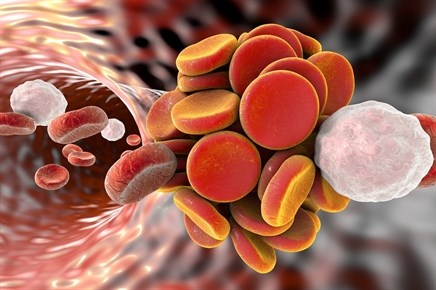 Pharmacomechanical thrombolysis does not reduce post-thrombotic syndrome in DVT
