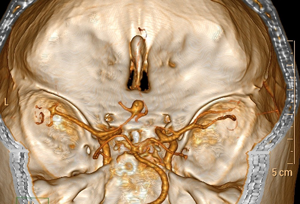 Intracranial Atherosclerotic Plaque Prevalence May Vary by Race