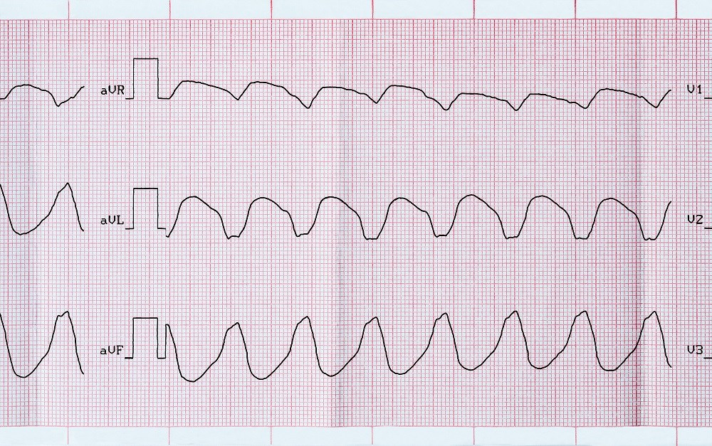 ACC/AHA/HRS Release Updated Guidelines for Ventricular Arrhythmia Management