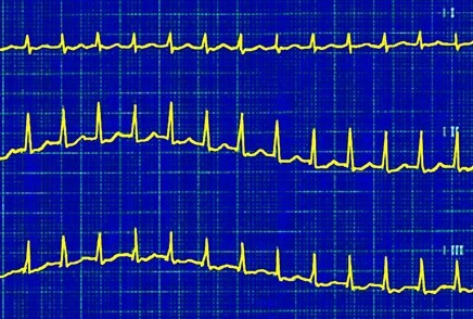Worsening Heart Palpitations With Hypertension and Obesity: A Case Study