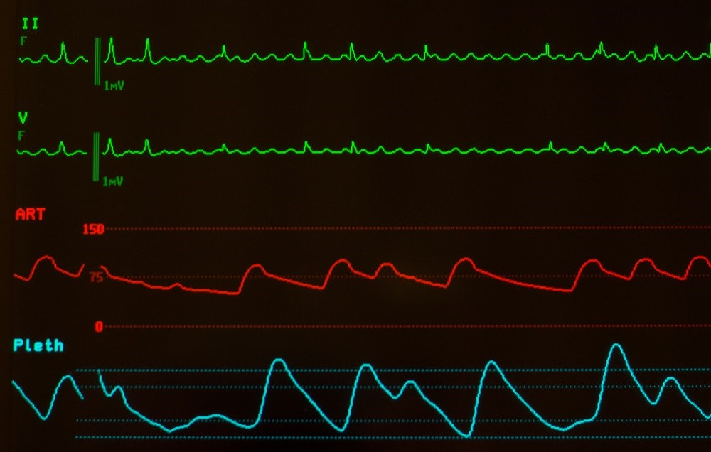 Atrial flutter may be associated with a lower risk for stroke compared with atrial fibrillation.