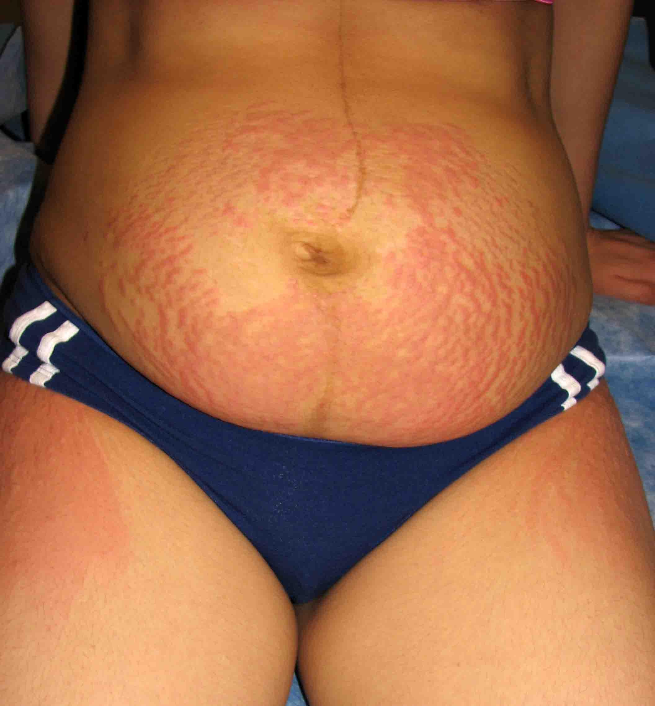Pupps rash - Pictures, Symptoms, Causes, Treatment