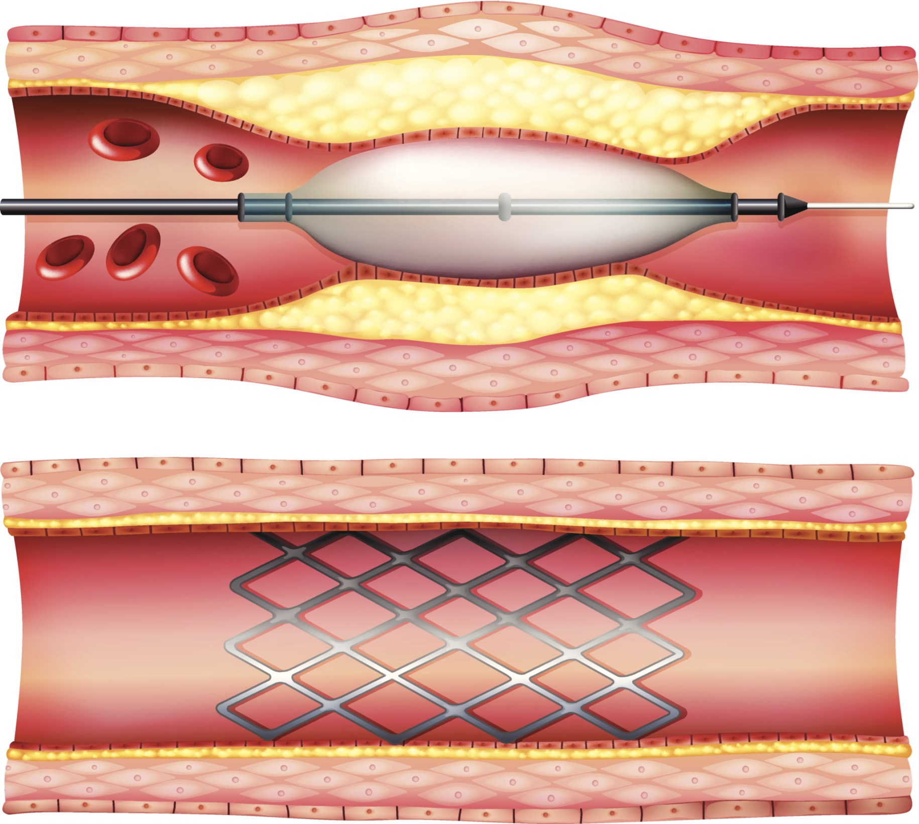 Advances in technology have shaped interventional cardiology practices.