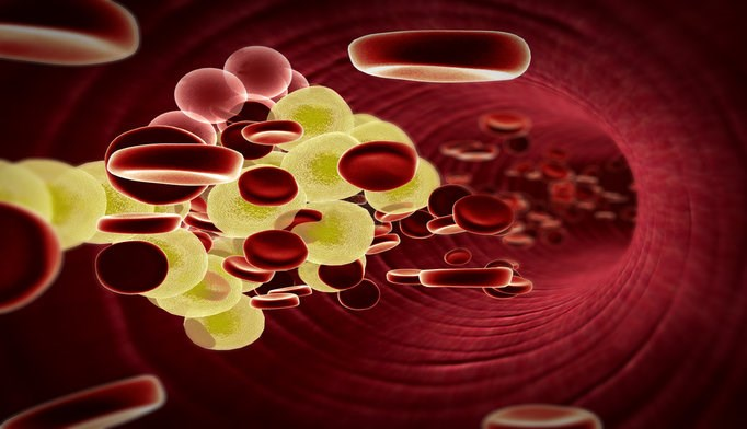 LDL-C Levels With Intensive Treatment for Autosomal Recessive Hypercholesterolemia