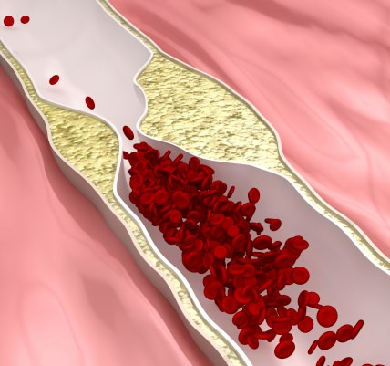 Femoral vs Carotid Plaque Screening for Coronary Artery Disease Risk