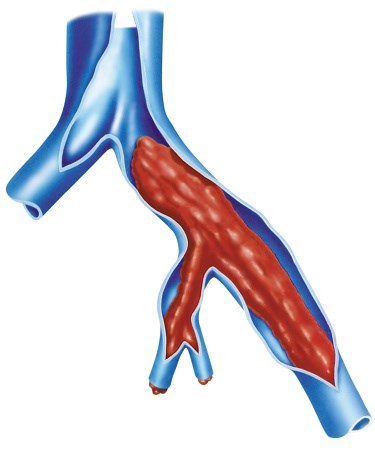 Dabigatran Approved for Prophylaxis of DVT and Pulmonary Embolism
