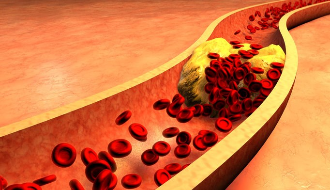 ADA: Clinical Benefit With Alirocumab in T2D Plus Statin Therapy