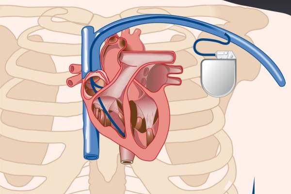 Implantable Cardioverter Defibrillator Recovery - EMBLEM S ... |Defibrillator Surgery Risks