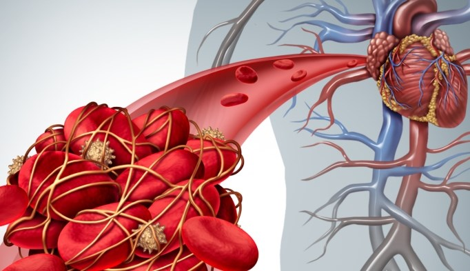 Dual-Modality Intravascular Imaging System Shows Promise in Coronary Artery Disease
