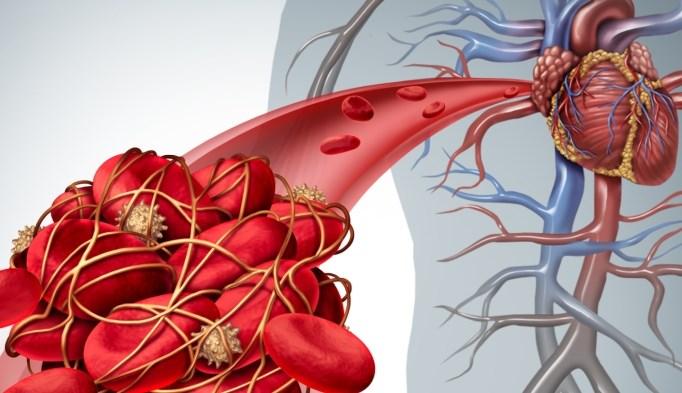 Three metabolic abnormalities — diabete,s hypertension, and hyperlipidemia — were examined.