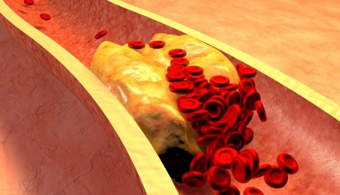 Lowering LDL Cholesterol HIV: Pitavastatin vs Pravastatin