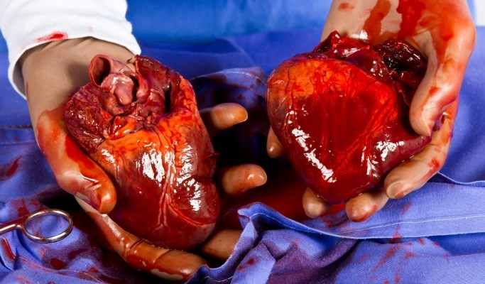 Clinical Challenge: Upper Respiratory Infection 1 Year After Heart Transplant