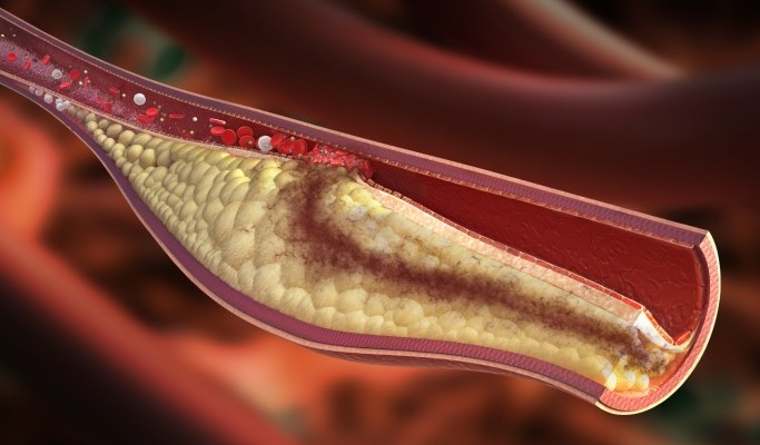 CVD, Atherosclerosis Risk in Systemic Lupus Erythematosus