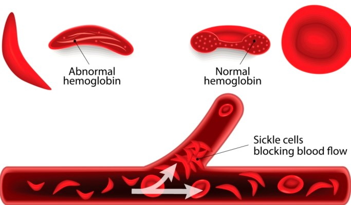 Sickle Cells Disease Patients Have Unique Cardiomyopathy with Restrictive Physiology