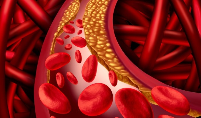 The risk for cardiovascular events in patients with type 2 diabetes without manifest cardiovascular disease is primarily related to the severity of atherosclerosis.