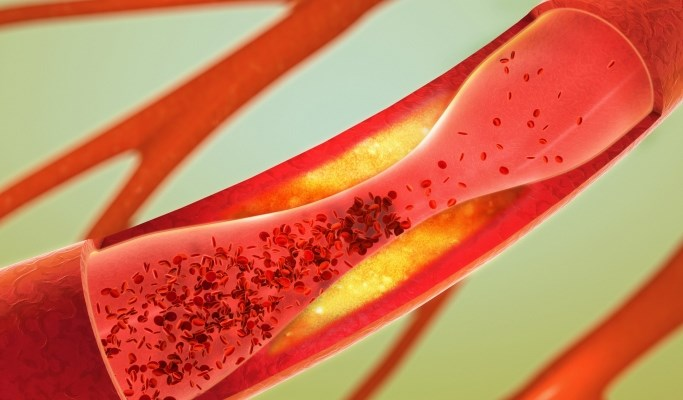 Coronary Artery Calcium May Help Predict CVD in South Asians