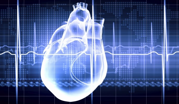 Sudden Cardiac Death Rates Up in Blacks vs Whites