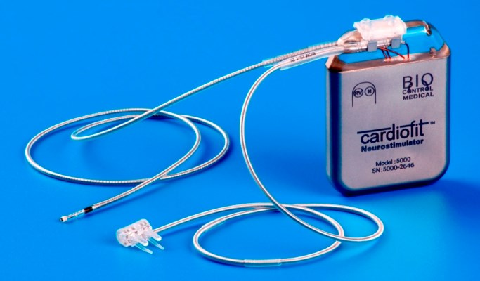 A vagus nerve stimulation device was implanted in half of the study participants to assess the benefit on chronic arm weakness.