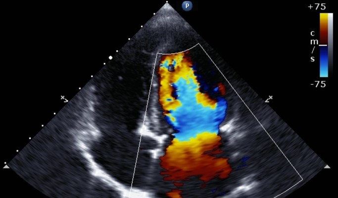 Aortic Stiffness, Concentric LV Remodeling Linked in T2DM