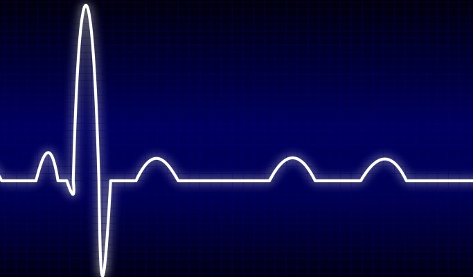Biventricular Pacing Superior to Right Ventricular Pacing in Patients With Atrioventricular Block