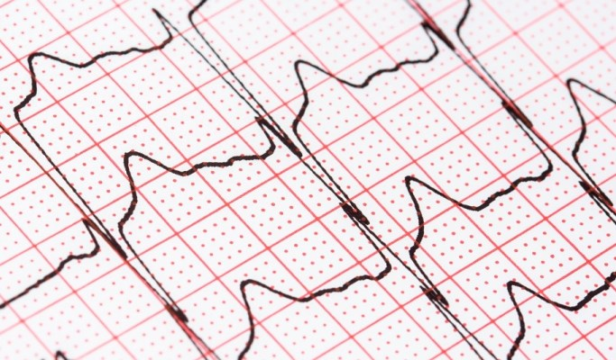 Prehospital ECG is useful for detecting arrhythmias, especially atrial fibrillation, in patients with stroke.