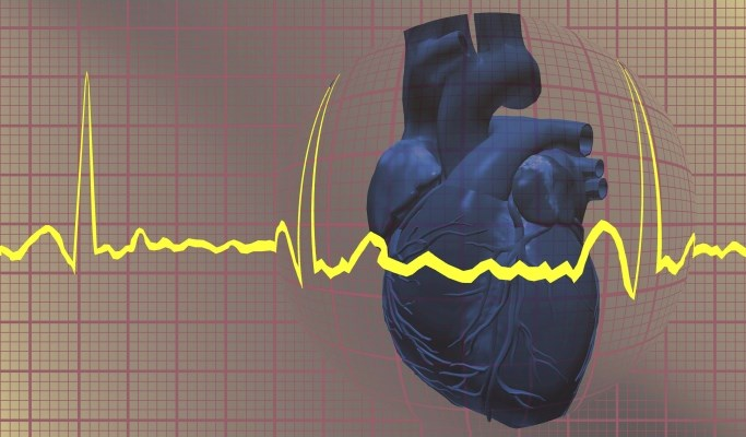 EKG Recommended for Pediatric Patients Before Antipsychotic Medication