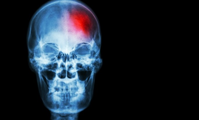 Both acute ischemic stroke and stroke risk factors are on the rise among Americans younger than 65 years of age.