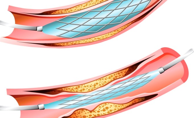 No major differences in MACE or stent thrombosis were shown between the 2 drug-eluting stents after 10 years of follow-up.