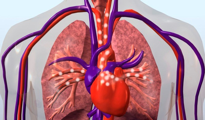 COPD Mortality Improves With Statins