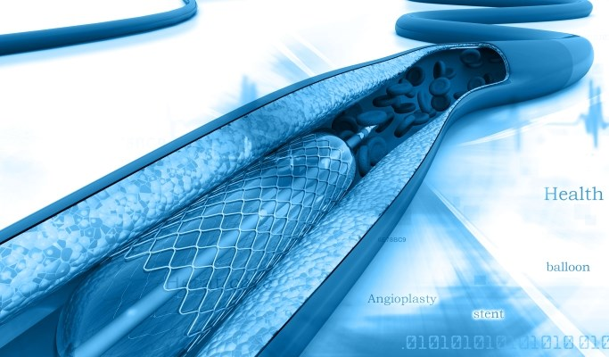 None of the patients who received everolimus-eluting stents had very late stent thrombosis.