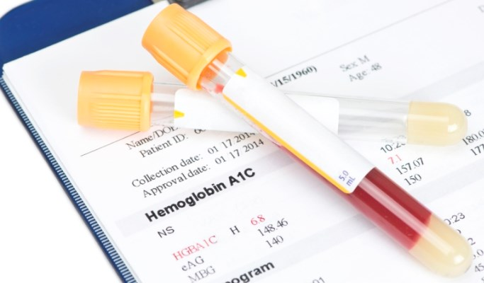 Lower HbA1c Post-PCI Promotes Better Outcomes in Diabetes