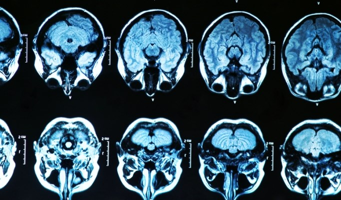 Filter Device Protects Against Brain Injury in TAVI