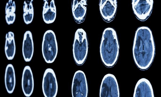 Can Stroke Predict Atrial Fibrillation?