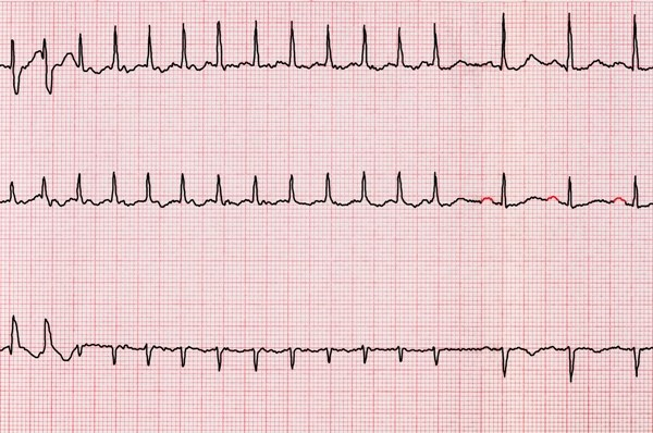 Atrial Fibrillation Clinical Guidelines: A Review of the Evidence Base