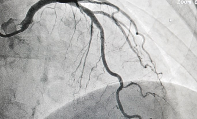 Instantaneous Wave-Free Ratio Noninferior to Fractional Flow Reserve for Guiding PCI