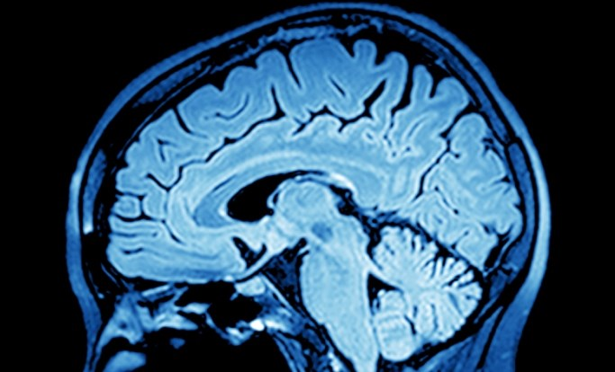 The initiative also made recommendations on the use of neuroimaging modalities.
