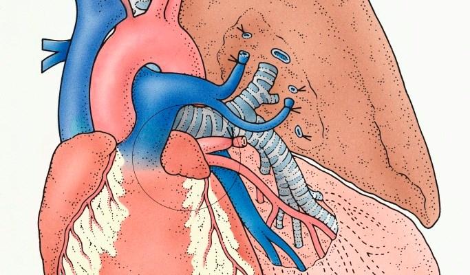 LAA Isolation Increases Arrhythmia-Free Interval Post-Catheter Ablation