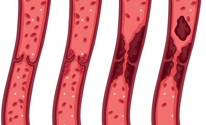 Reducing Venous Thromboembolism Risk With Computerized