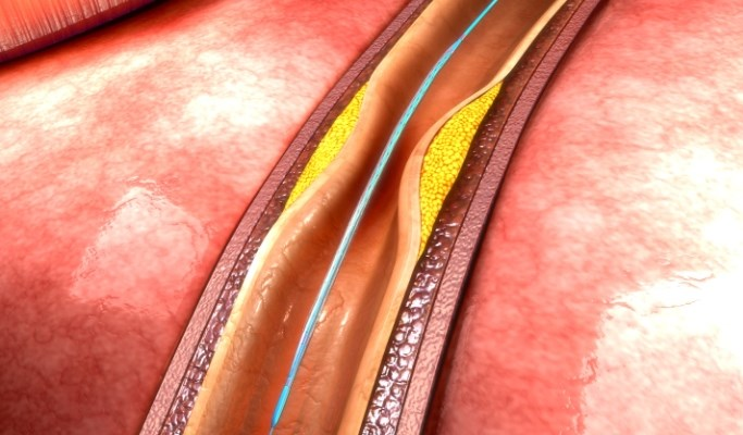 Target Vessel Thrombosis in BVS vs Everolimus-Eluting Stents