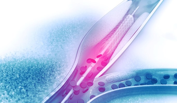 Clotting Time in Transfemoral PCI Linked to Bleeding Risk