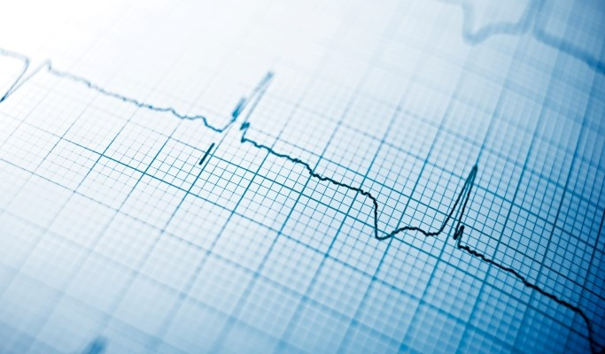 Electrocardiographs may be used as a means to lock and unlock a patient's electronic health records.