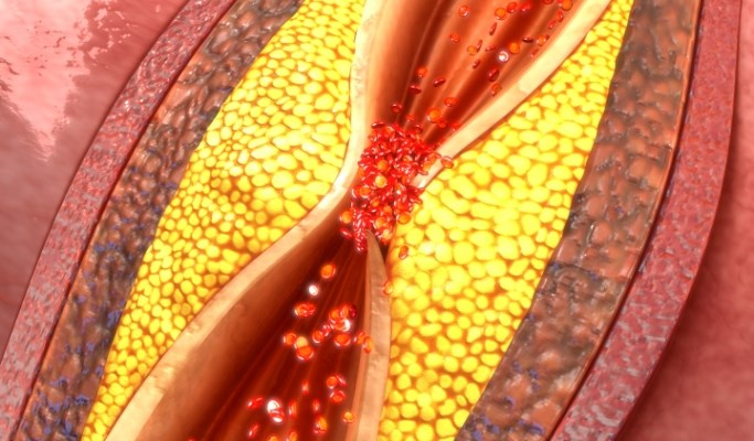 Atherosclerosis Develops in Pts Without Traditional CV Risk Factors
