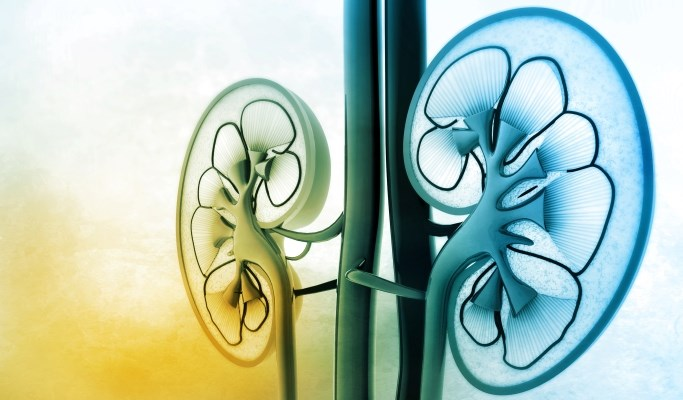 Vascular Calcification in End-Stage Renal Disease