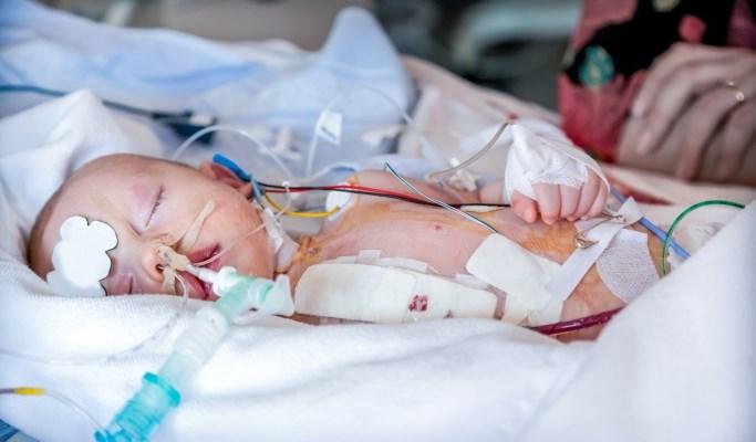 Mandatory Screening for Congenital Heart Disease: Effects on Infant Mortality