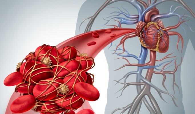 Arterial Thromboembolic Event Risk Increased Prior to Cancer Diagnosis